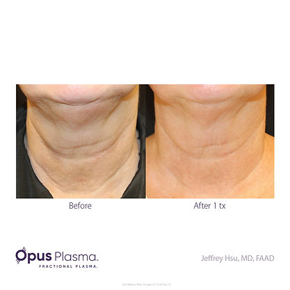 Opus-Before_and_After-B2C-2.jpg