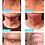 Thumbnail: ELLADERM® PLATINUM NECK CREAM
