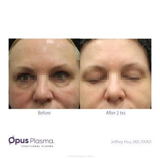 Opus Plasma