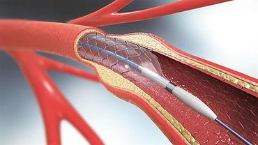 Canberra Vascular Surgery.jpeg