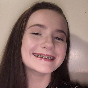 A photo of a dark haired girl with braces and a big smile.