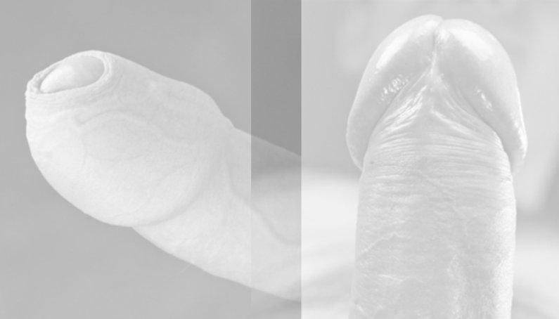 beschnittener-unbeschnittener-penis.jpg