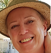 smiling woman alopecia hat