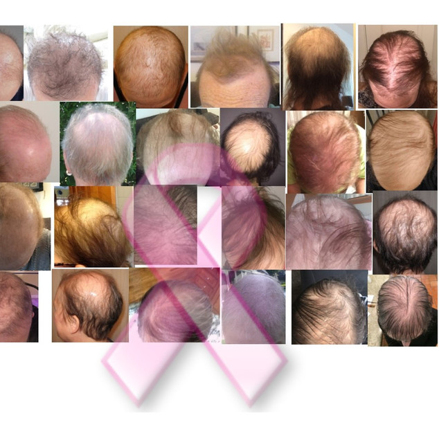 Permanent alopecia from chemo