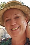 woman in sunhat with alopecia