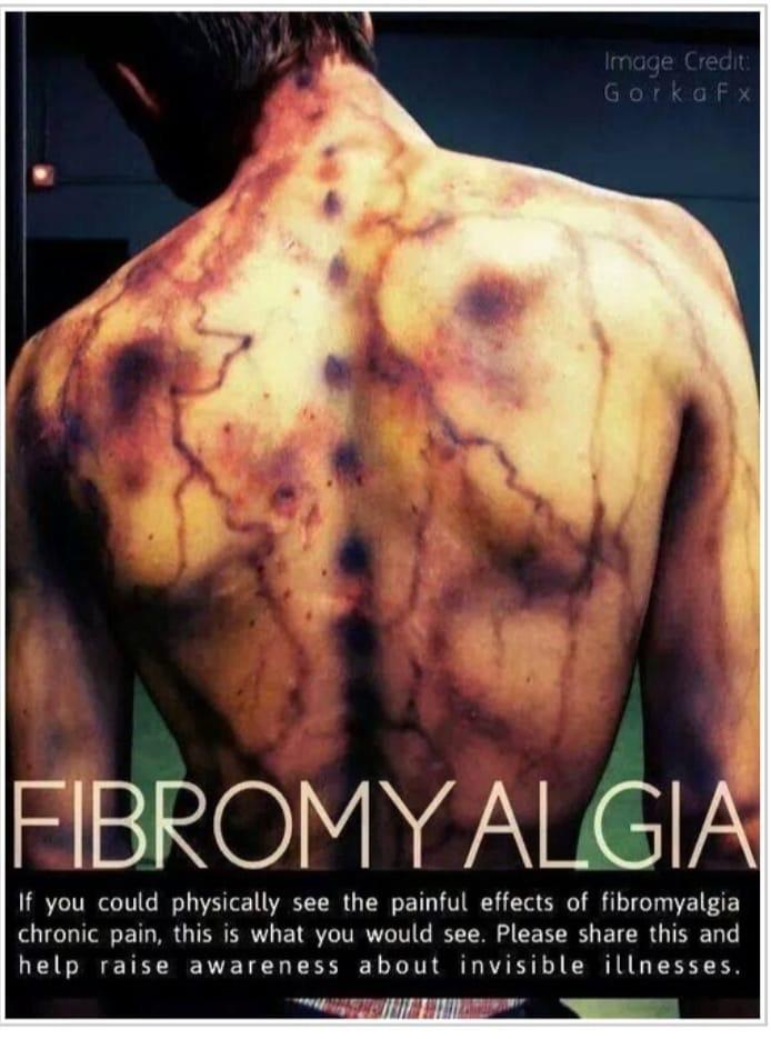 Fibromyalgie, die geheimnisvolle Krankheit