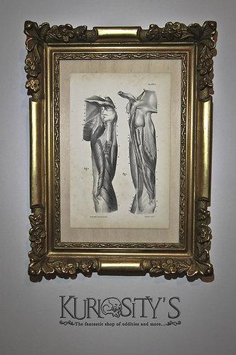 Lithographie médicale de 1860 environ