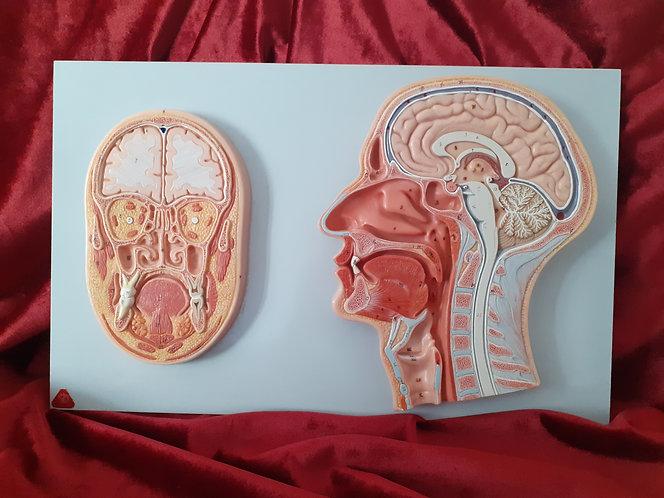 Planche anatomique  du cerveau en relief