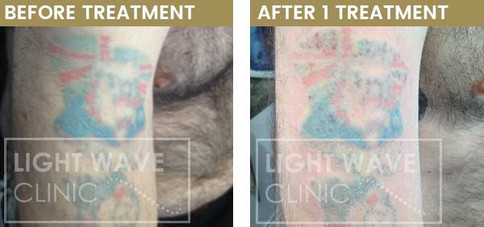 rickmansworth-watford-tattoo-removal-09.