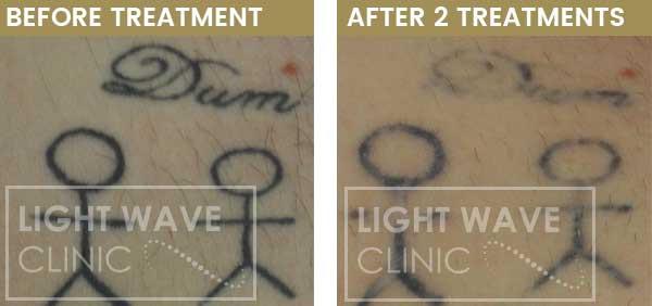 rickmansworth-watford-tattoo-removal-13.