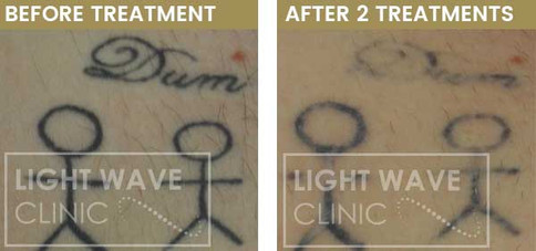 rickmansworth-watford-tattoo-removal-13.