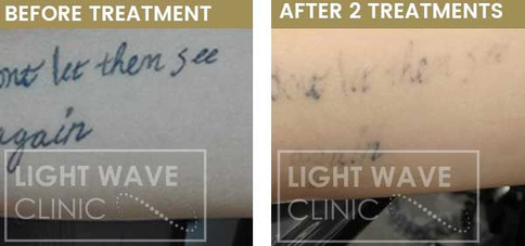 rickmansworth-watford-tattoo-removal-32.