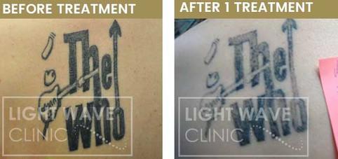 rickmansworth-watford-tattoo-removal-28.
