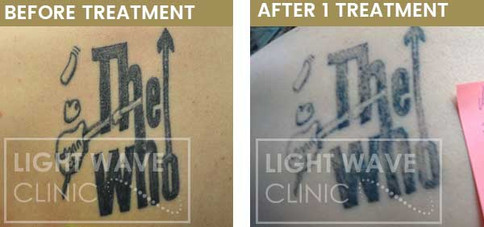 rickmansworth-watford-tattoo-removal-28.