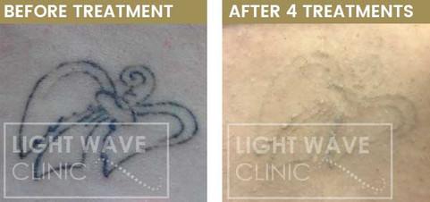 rickmansworth-watford-tattoo-removal-38.