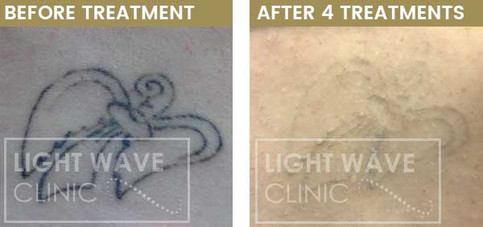 rickmansworth-watford-tattoo-removal-38.