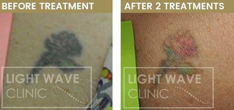 rickmansworth-watford-tattoo-removal-45.