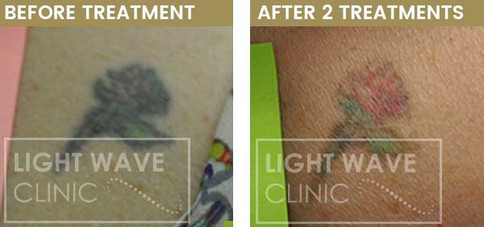 rickmansworth-watford-tattoo-removal-45.