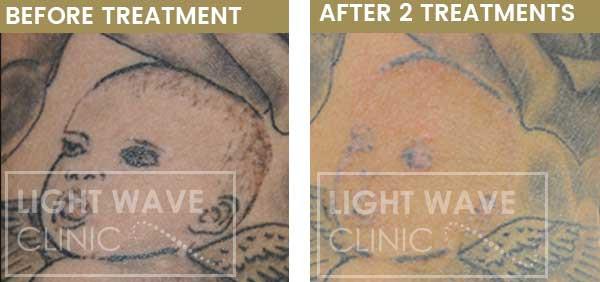 rickmansworth-watford-tattoo-removal-23.
