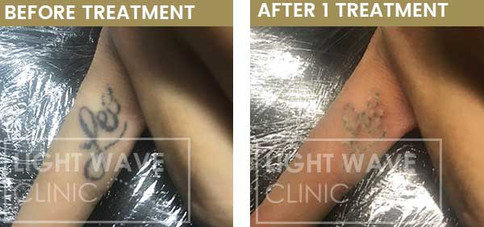 rickmansworth-watford-tattoo-removal-20.