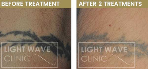 rickmansworth-watford-tattoo-removal-12.