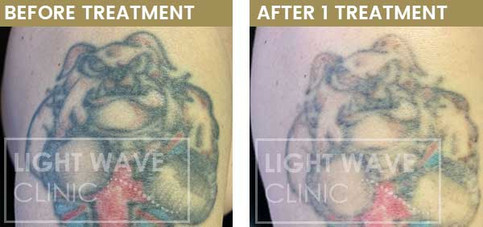 rickmansworth-watford-tattoo-removal-08.