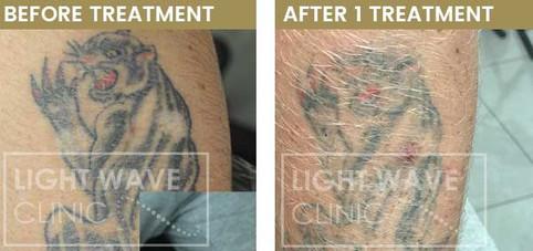 rickmansworth-watford-tattoo-removal-03.