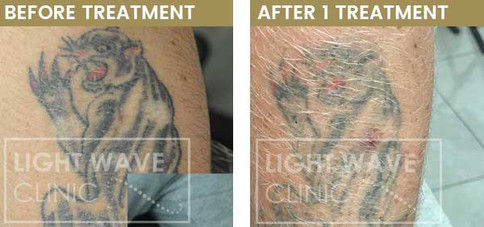 rickmansworth-watford-tattoo-removal-03.