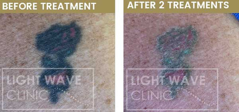 rickmansworth-watford-tattoo-removal-31.