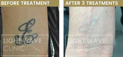 rickmansworth-watford-tattoo-removal-18.
