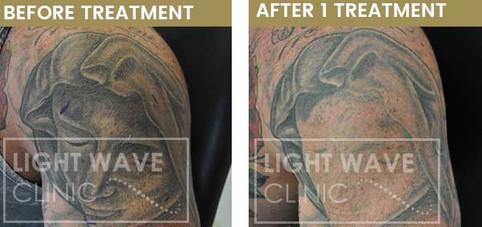 rickmansworth-watford-tattoo-removal-27.