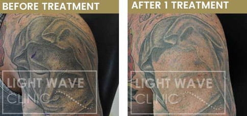 rickmansworth-watford-tattoo-removal-27.