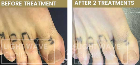 rickmansworth-watford-tattoo-removal-22.