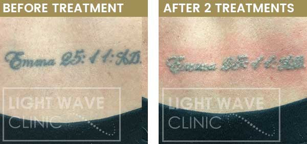 rickmansworth-watford-tattoo-removal-07.