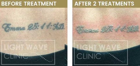 rickmansworth-watford-tattoo-removal-07.