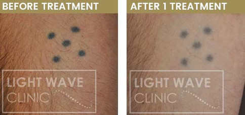 rickmansworth-watford-tattoo-removal-16.