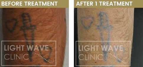 rickmansworth-watford-tattoo-removal-15.