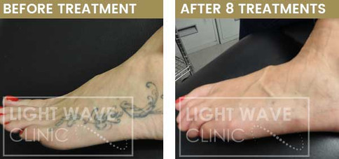 rickmansworth-watford-tattoo-removal-40.