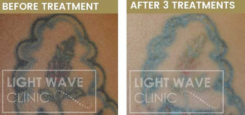 rickmansworth-watford-tattoo-removal-29.