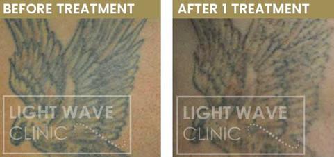 rickmansworth-watford-tattoo-removal-17.