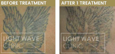 rickmansworth-watford-tattoo-removal-17.