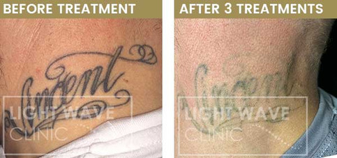rickmansworth-watford-tattoo-removal-46.