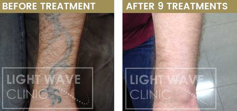 rickmansworth-watford-tattoo-removal-42.