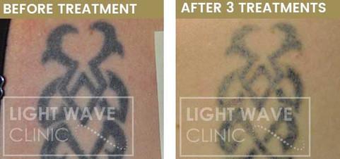 rickmansworth-watford-tattoo-removal-57.