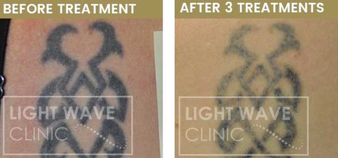 rickmansworth-watford-tattoo-removal-57.