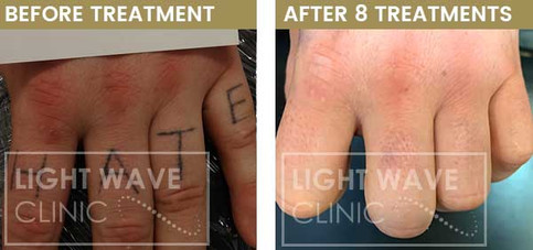 rickmansworth-watford-tattoo-removal-05.