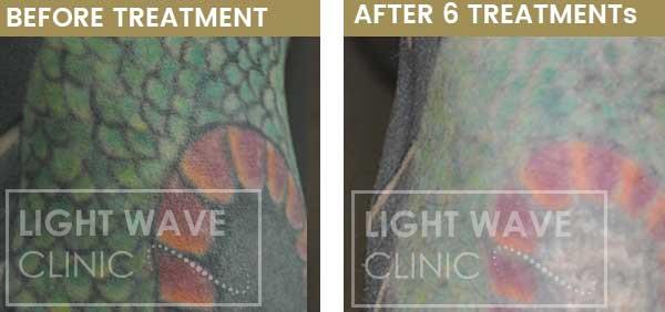 rickmansworth-watford-tattoo-removal-26.