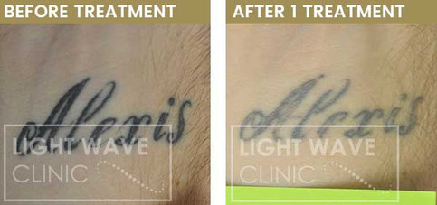 rickmansworth-watford-tattoo-removal-36.