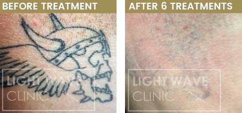rickmansworth-watford-tattoo-removal-02.
