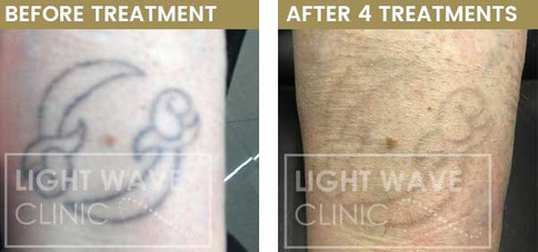 rickmansworth-watford-tattoo-removal-39.